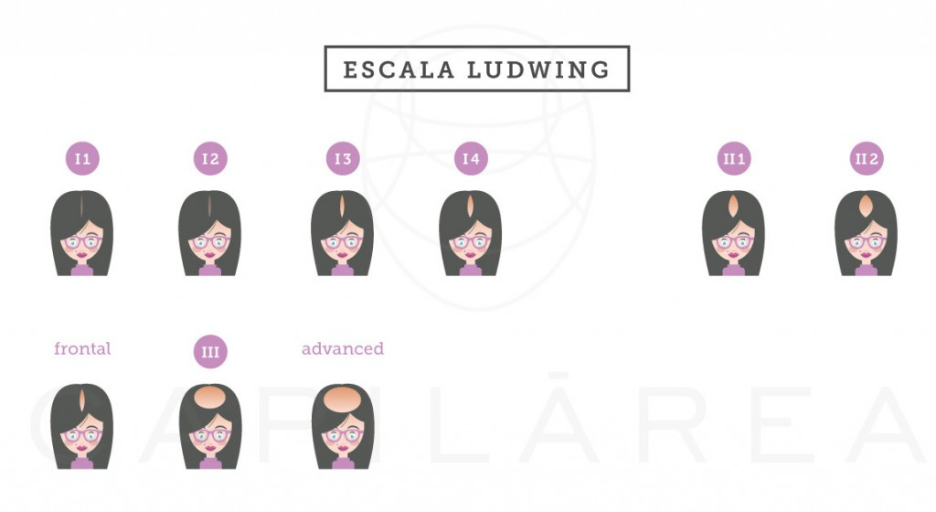 Escala-Ludwing