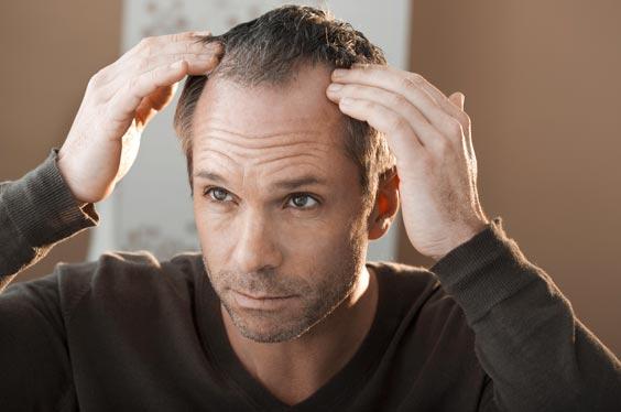 Hombre con dudas de si el pelo de un injerto capilar se cae