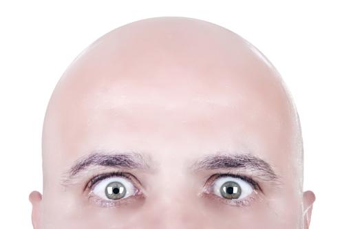 Imagen de hombre con calvicie androgenética
