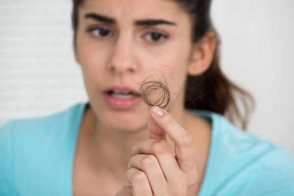 Mujer con alopecia femenina y fuerte caída del pelo