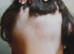 Imagen Alopecia Areata Ophiasis