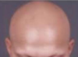 Imagen Alopecia Areata Total