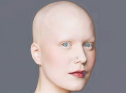 Imagen Alopecia Areata Universal