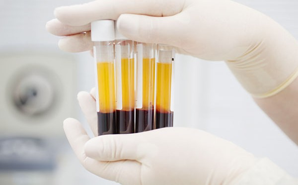 Imagen de Plasma Sanguíneo Rico en Plaquetas y Dutasterida
