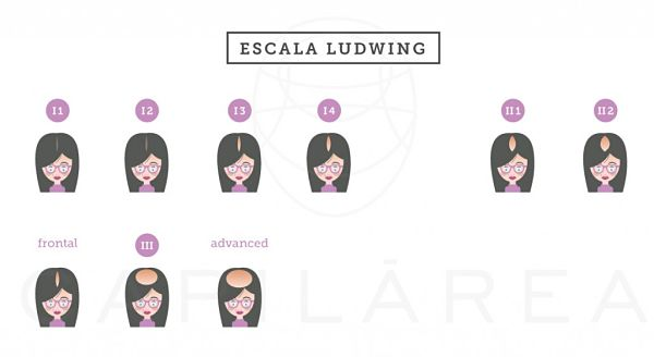 Escala Ludwig de la Clínica Capilárea que muestra las distintas fases de la Alopecia Androgenética femenina