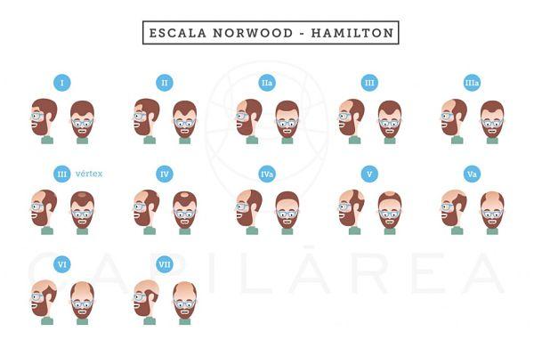 Escala Norwood Hamilton de Capilárea que muestra las fases de Alopecia Androgenética masculina