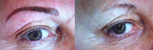 Imagen de Micropigmentación de cejas