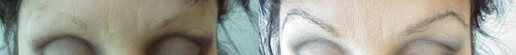 Injerto de cejas antes y después