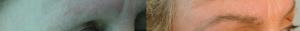 Microinjerto de cejas antes y después