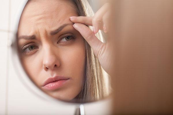 Imagen de mujer con problema de alopecia en las cejas