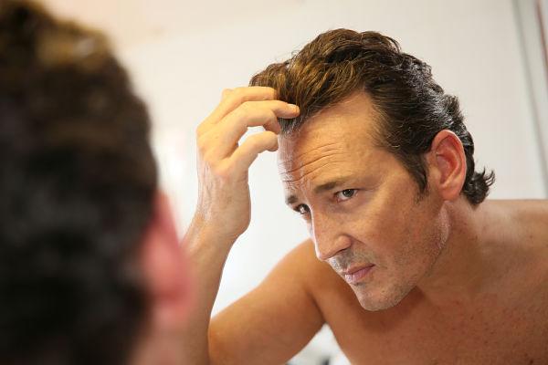 Imagen de hombre con problemas de alopecia que se plantea un transplante de pelo