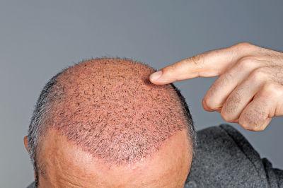 Imagen de un hombre que se ha realizado un Microinjerto capilar