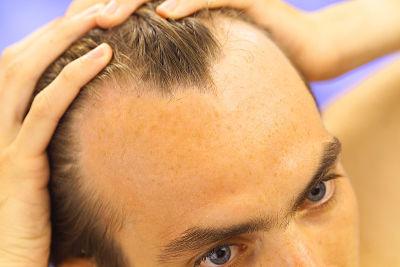 Imagen de hombre con alopecia androgenética masculina