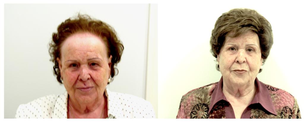 Imagen de mujer antes y después del Sistema de Integración Capilárea