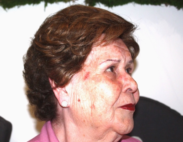 Imagen de Luz, paciente de la clínica Capilárea, con un Sistema de Integración Capilar