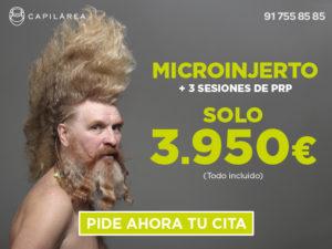 Injerto de pelo y PRP alopecia