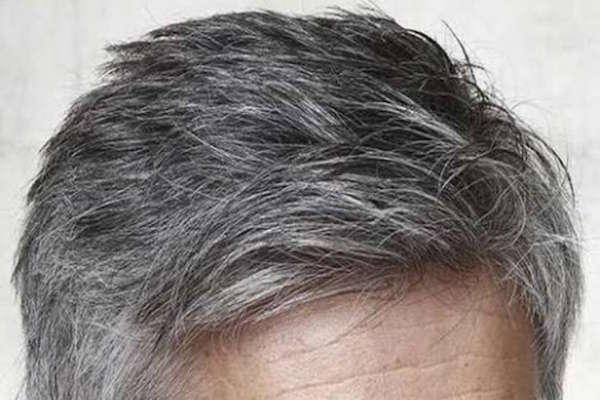 Envejecimiento capilar
