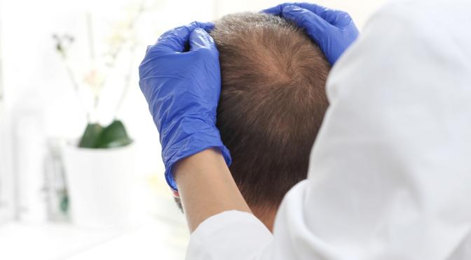 Relación entre alopecia y Covid