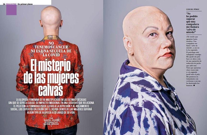 Reportaje alopecia Femenina en XL Semanal